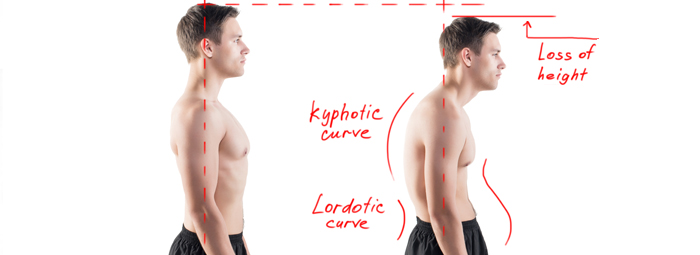 Postural correction Therapy